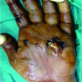 Simultaneous open and Closed Dislocation of four Metacarpophalangeal Joints: A Case Report and Review of Literature