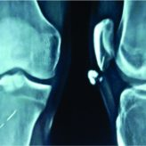 Calcinosis Cutis Circumscripta Of Knee– A Rare Presentation