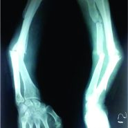 A very rare Presentation of Bifocal Non Union Radius with Ipsilateral Ulnar Shaft Non Union: Case Report