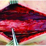 Isolated Acute Exertional Compartment Syndrome (AECS) of the Extensor Carpi Ulnaris