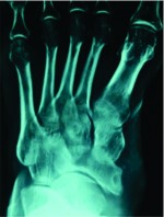 Tuberculosis of Navicular Bone – A Rare Presentation