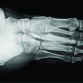 Melorheostosis of the Foot: A Case Report of A rare entity with a Review of Multimodality Imaging Emphasizing the Importance of Conventional Radiography in Diagnosis