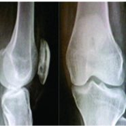 Case Report of Two Cases of Patella Subacute Osteomyelitis in Diabetic Women A Rare Entity