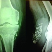 Bakers Cyst with Synovial Chondromatosis of Knee – A Rare Case Report