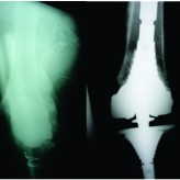 Mechanical Failure of Revision Knee Prosthesis at Both Femoral and Tibial Modular Metaphyseal Stem Junctions