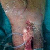 Finger Flexion Contracture: First Manifestation of Gout