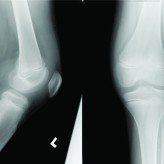 Acute Knee Pain in a Child Due to Pigmented Villonodular Synovitis