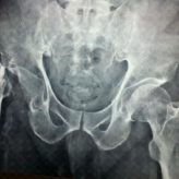 Total Hip Arthroplasty in a Girdlestone Hip following a Failed Hemiarthroplasty