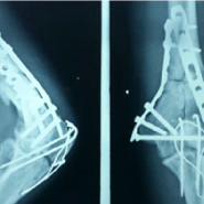 Atypical Presentation of Tuberculosis of Elbow Joint in Operated Case of Distal Humerus Fracture