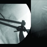 Intra-Pelvic Migration of Sliding Hip Screw During Osteosynthesis of Hip Fracture: A Rare Avoidable Intraoperative Complication