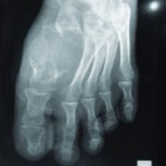 An Unusual Case of Giant Cell Tumor of First Metatarsal: A Rare Case Report and Review of Literature