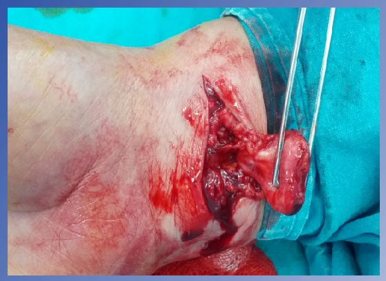 Post-traumatic Median Nerve Neuroma in Wrist. A Case Report and brief ...