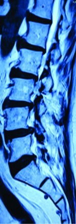 Isolated Proximal Fibular Stress Fracture In Osteoarthritis Knee Presenting As L5 Radiculopathy