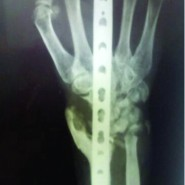 Persistent Posttraumatic Wrist Pain – Tuberculosis Infection Should be in the Differential Diagnosis. A Rare Case Report