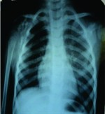 A Rare Case of Progressive Gorham's Disease of Right Shoulder Girdle and Cervical Spine in A Child: 10 Year Follow-up and A Review of Literature