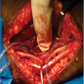 Iatrogenic Ulnar Nerve Injury post Laceration Suturing – An Unusual Presentation