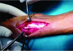 Ligamentous Reconstruction of Traumatic Dislocation of Thumb Carpometacarpal Joint: Case Report and Review of Literature