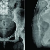 Inferior Vena Caval Tumor Thrombus in Giant Cell Tumor of Sacrum – An Unusual Complication Treated with Multimodality Management