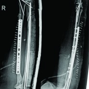 Unilateral, Multifocal Fracture of Radial with Ipsilateral Midshaft Ulna Fracture – Two Such Unusual and Rarely Reported Cases