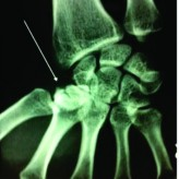 Isolated Coronal Fracture of Trapezium-  A Case Report with Review of Literature