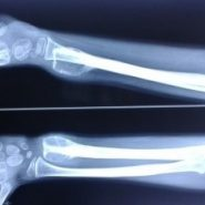 Primary Epiphyseal Aneurysmal Bone Cyst Of Distal Ulna