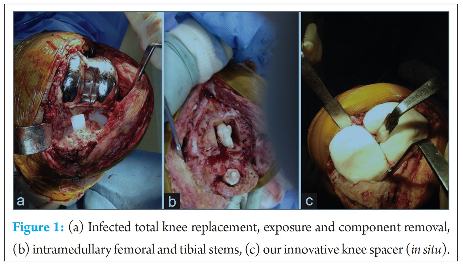 Management Of Infected Total Knee Arthroplasty By A New Innovative