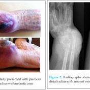 A Case Report of Primary Extranodal Non-hodgkin Lymphoma First Presentation as a Soft Tissue Swelling Around the Wrist