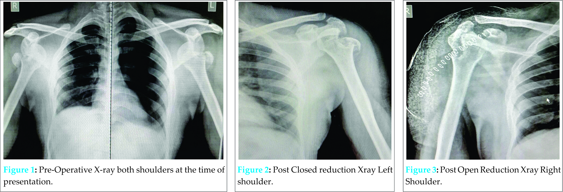 Bilateral Neglected Anterior Shoulder Dislocation with Greater ...