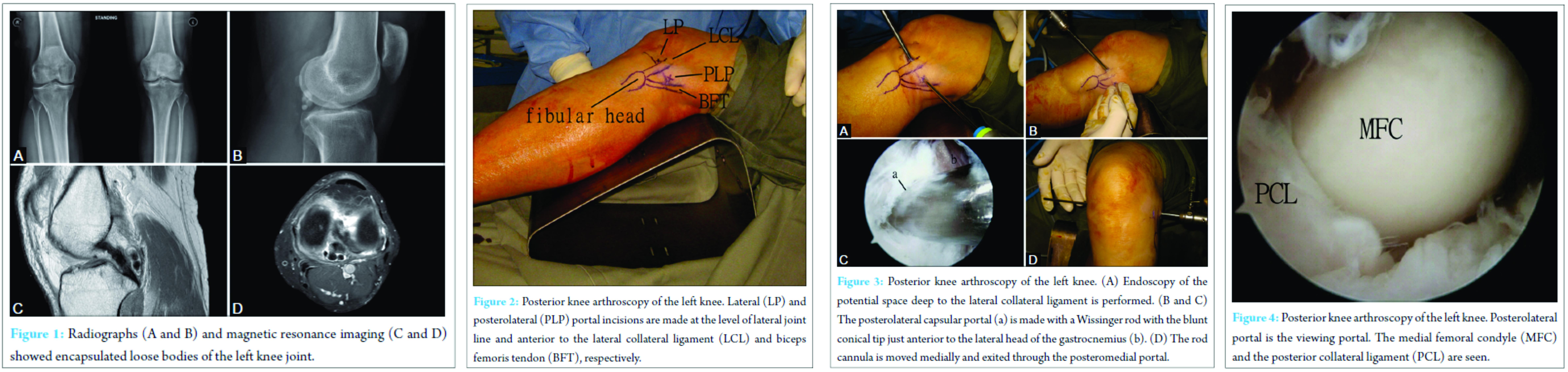Posterior Knee Loose Bodies Treated By Posterior Knee Arthroscopy