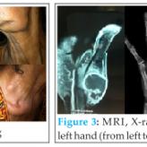 Excision Arthroplasty for First CMC Joint Tuberculous Osteomyelitis