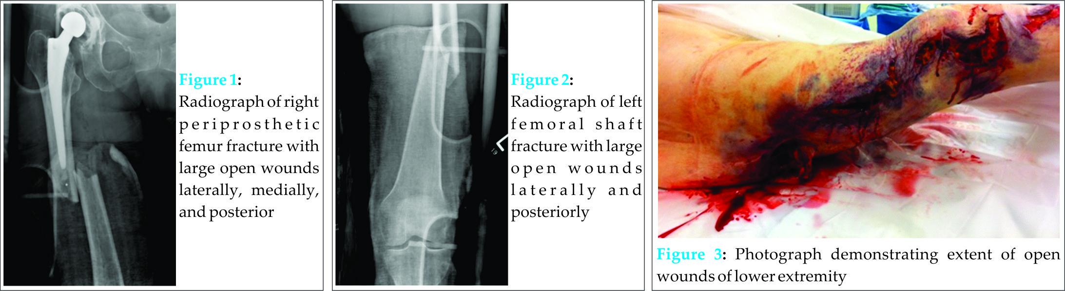 bilateral femoral fractures essay