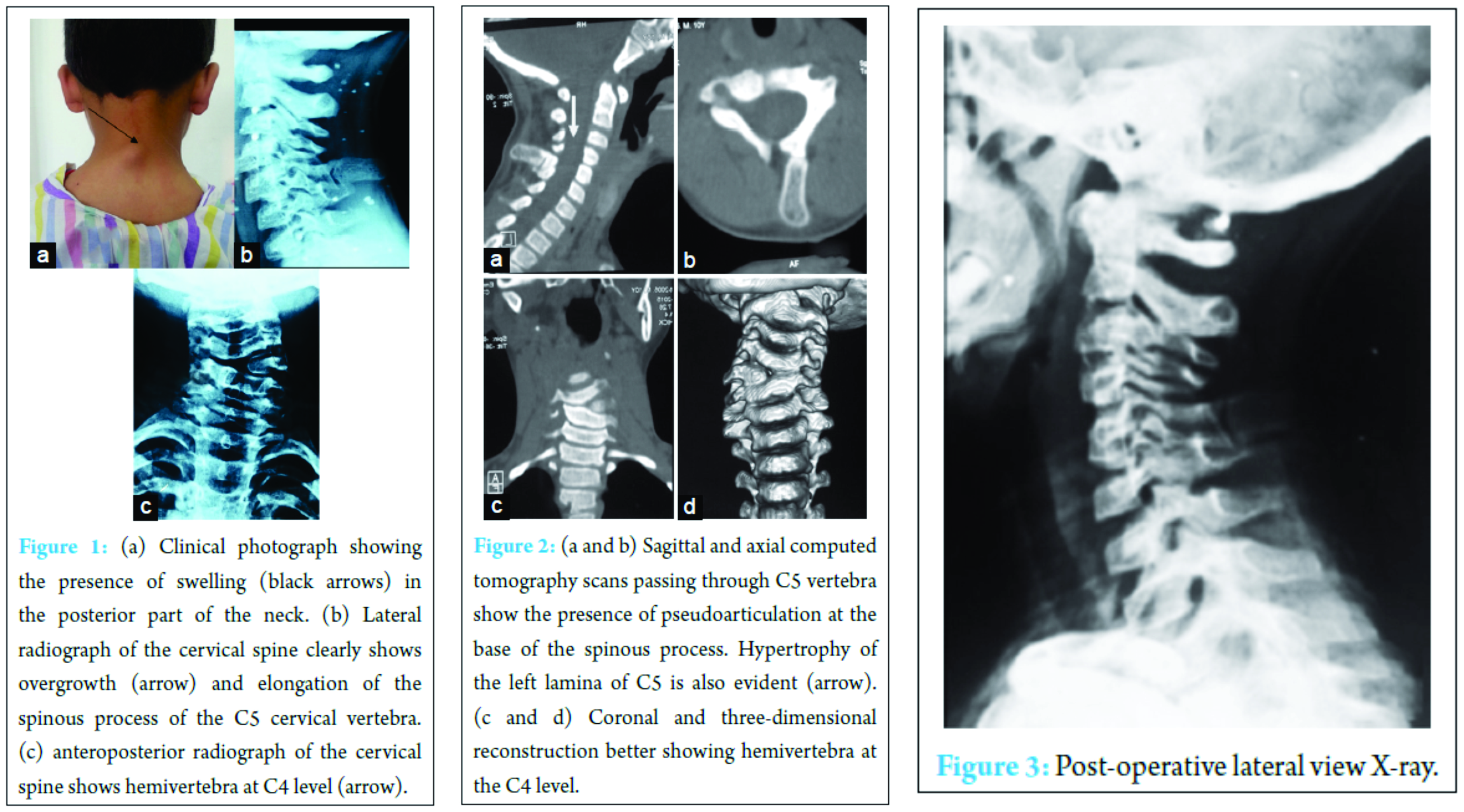 Hyperplasia Of Lamina And Spinous Process Of C5 Vertebrae And