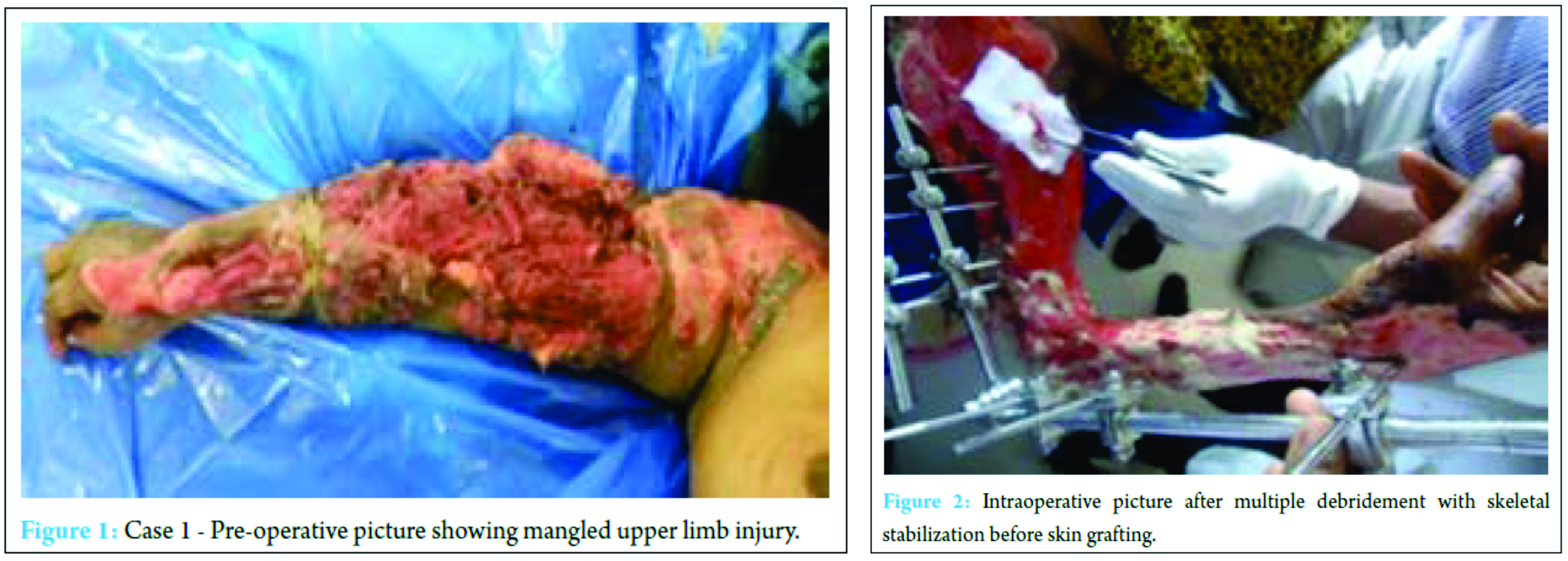 Delayed Injuries After Car Accident