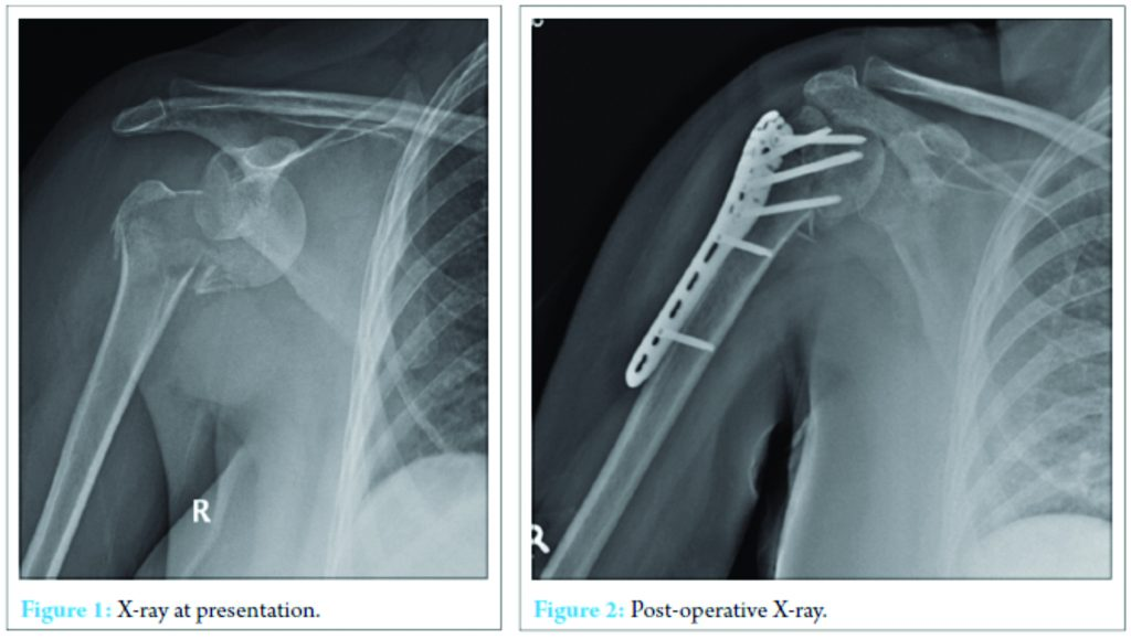 Fracture Dislocation of Shoulder with Brachial Plexus Palsy: A Case ...