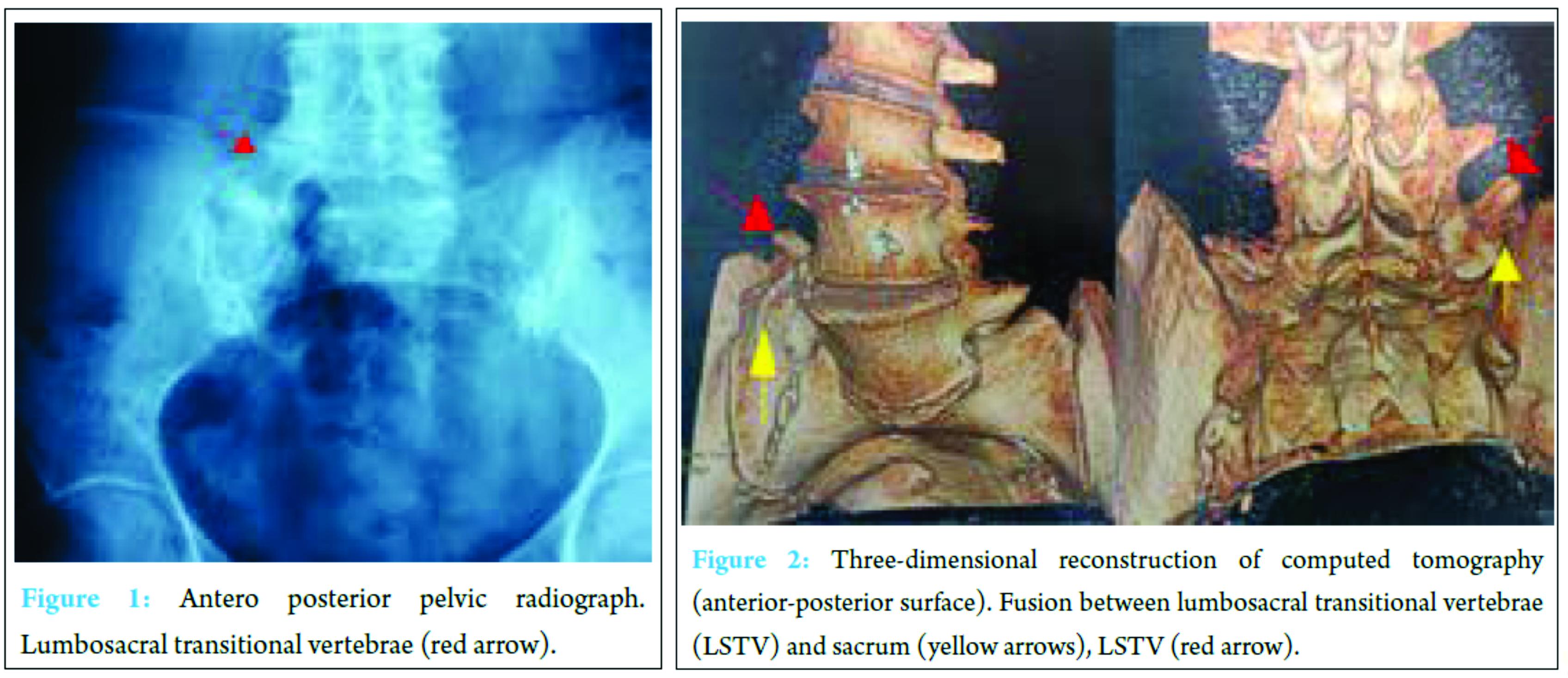An Unusual Case Report of Bertolotti\'s Syndrome: Extraforaminal ...
