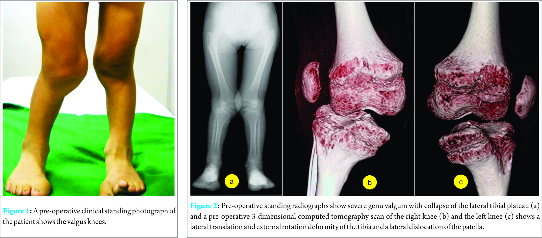 the proximal lateral tibial plateau external rotation deformity of the lower leg and lateral patellar dislocation fig 2 the tibiofemoral angle of
