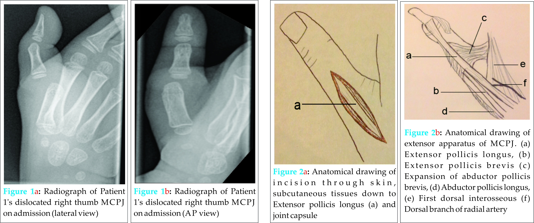 Delayed Presentation of Metacarpophalangeal Joint Dislocation of the ...