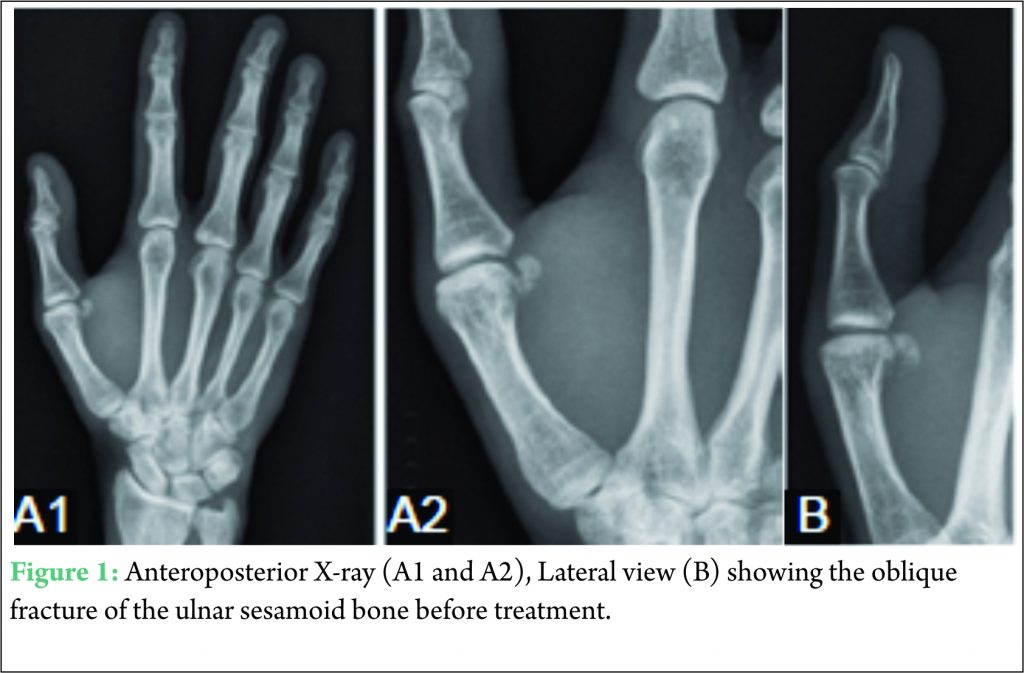 Case Report: Oblique Fracture of the Ulnar Sesamoid Bone of the ...