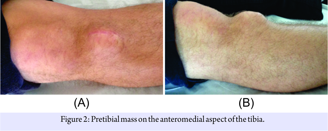 Multiple Recurrent Cyst Formation after Anterior Cruciate