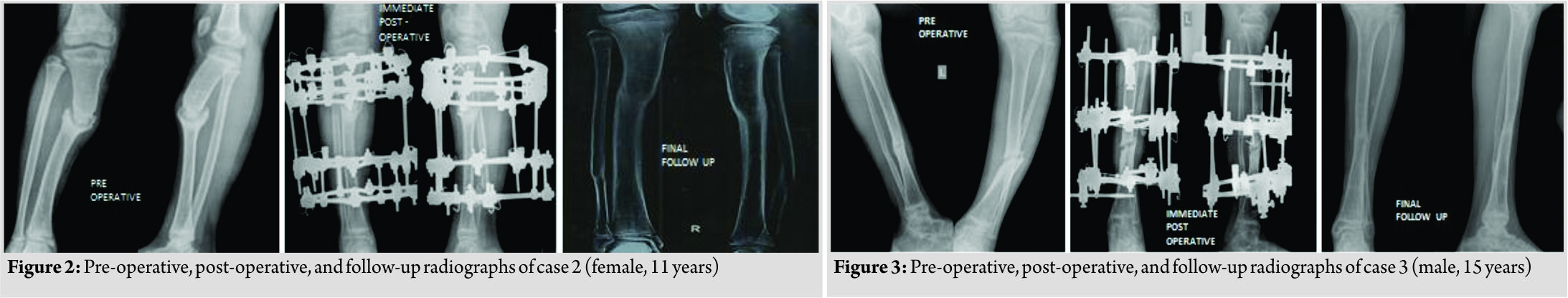 Compression Osteosynthesis - An Effective Solution for