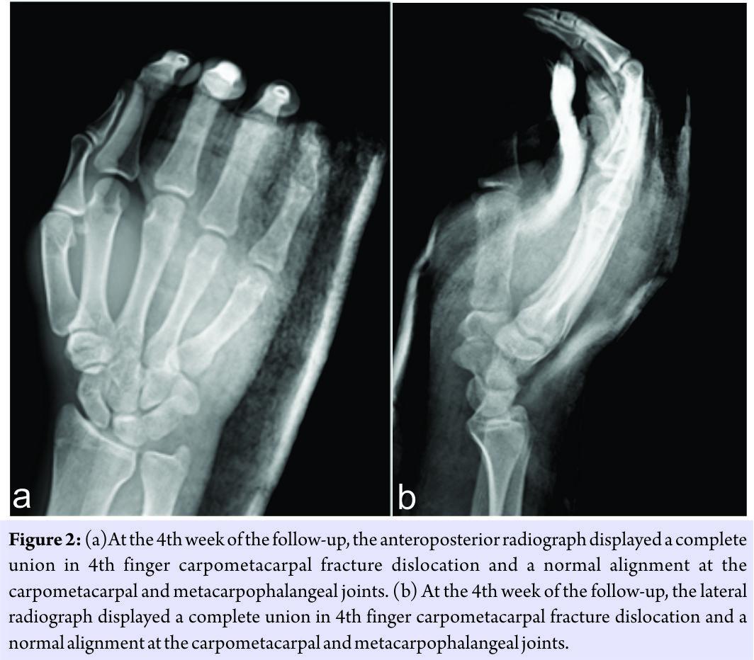 Metacarpophalangeal joint dislocation