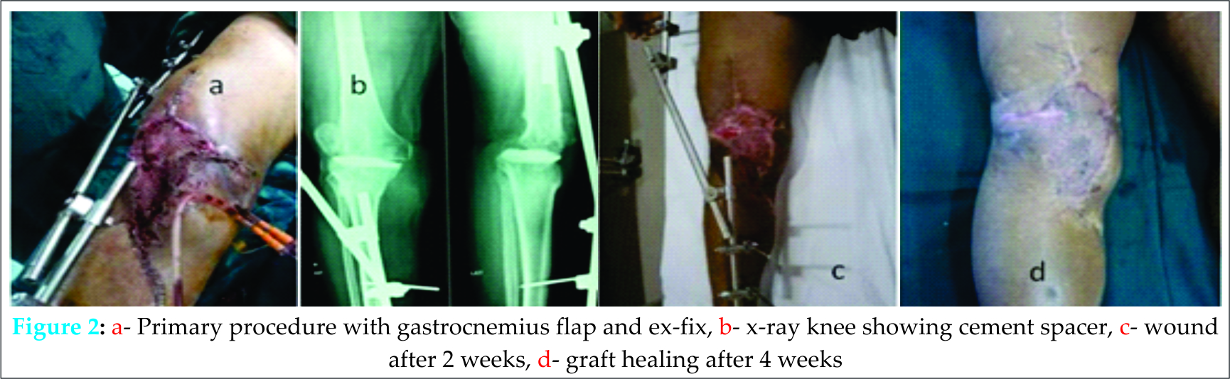 Complex Primary Total Knee Replacement Tkr Using