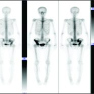 Primary Lymphoma of the Pelvis: A Case Report