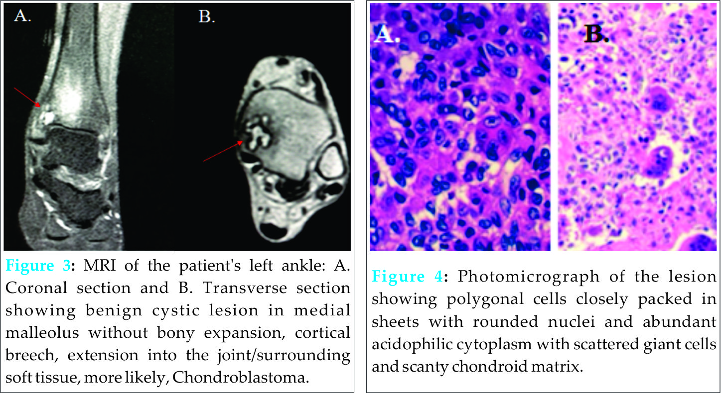 Chondroblastoma of the Medial Malleolus: A Case Report of A