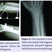 Comminuted Distal Radial Fracture with Large Rotated Palmar Medial Osteochondral Fragment in the Joint