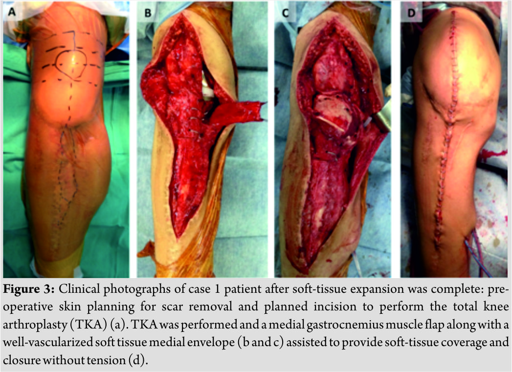 Soft Tissue Expansion Beforetotal Knee Arthroplasty A