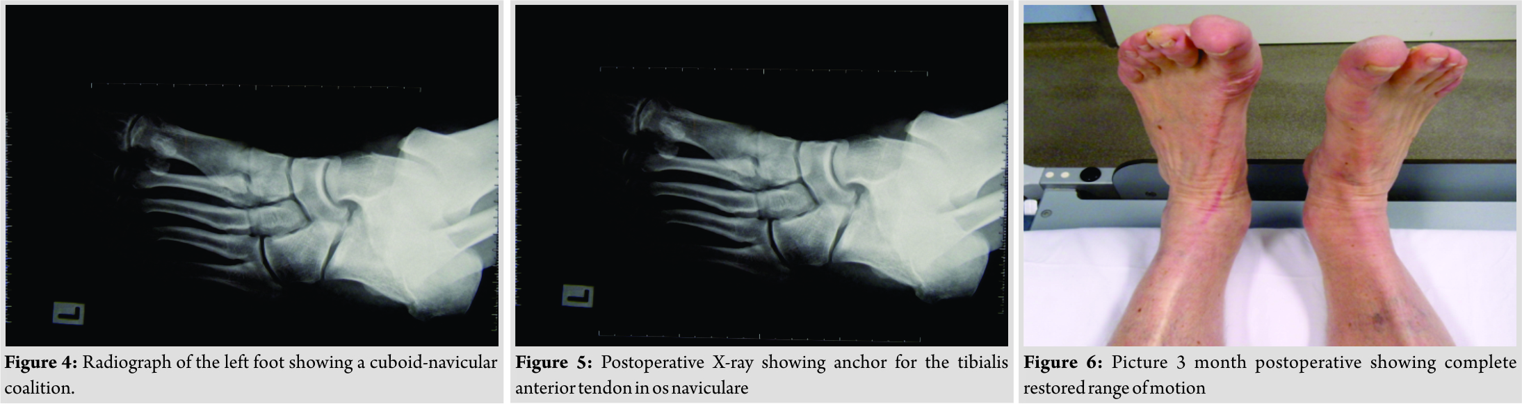 Rare Combination Of A Cuboid Navicular Tarsal Coalition With A