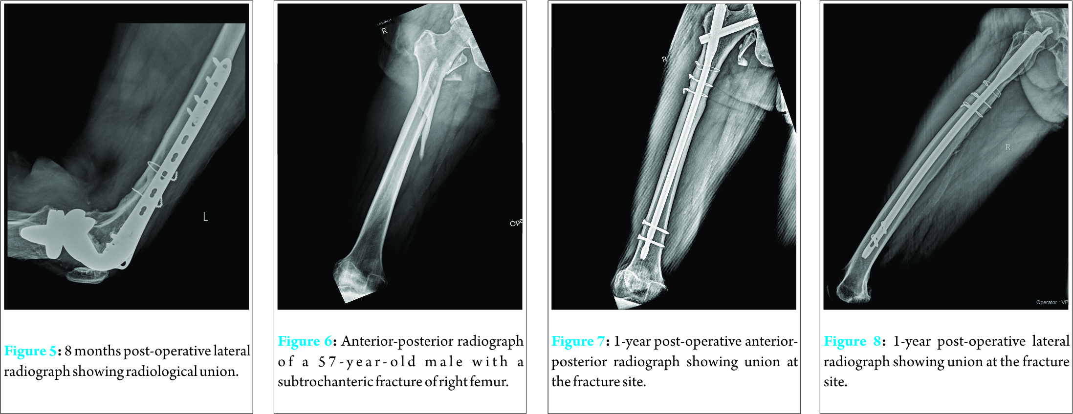 Cerclage Wiring as an Adjunct for the Treatment of Femur ... on