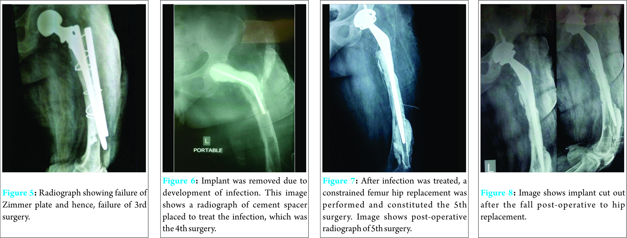 A Case Report of Dual Incision Technique for Total Femur