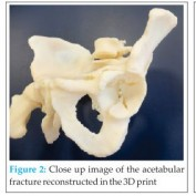 The Use of a 3D Printer in Pre-operative Planning for a Patient Requiring Acetabular Reconstructive Surgery